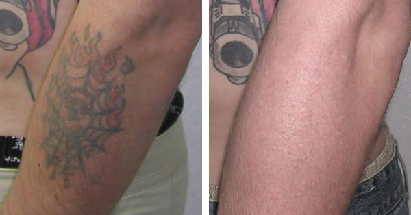 Laser tattoo removal best tattoo ideas gallery for New tattoo removal technology